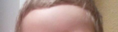 stirnfrei
